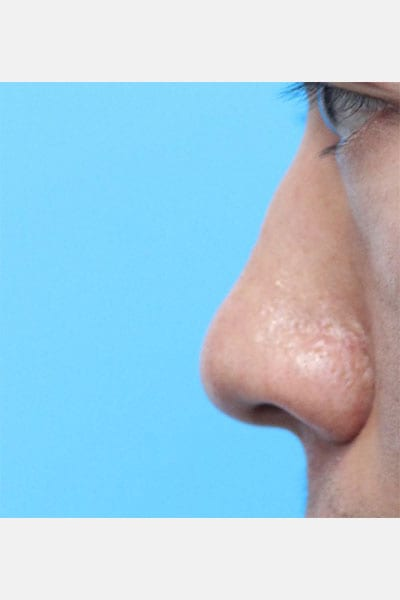 Asian Rhinoplasty - Side View Before