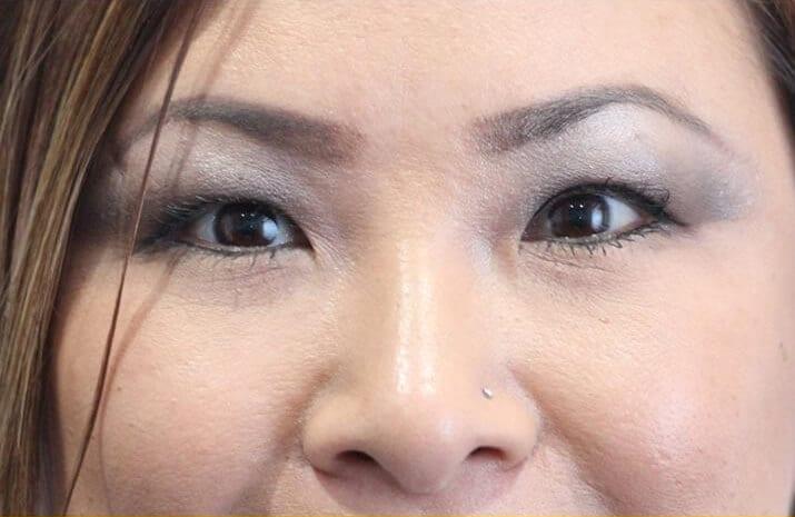 Asian Blepharoplasty in Walnut Creek, CA - Patient After 2