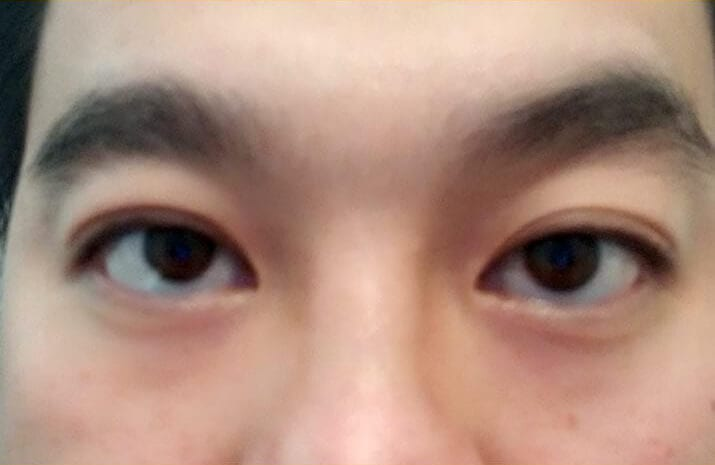 Asian Blepharoplasty in Walnut Creek, CA - Patient After 1