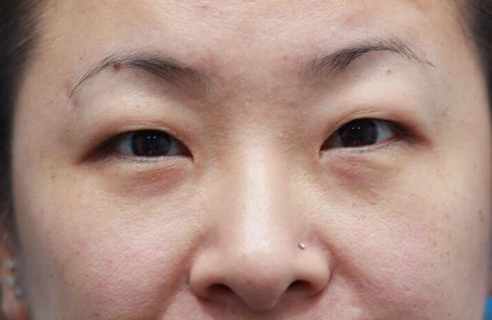 Asian Blepharoplasty in Walnut Creek, CA - Patient Before 2