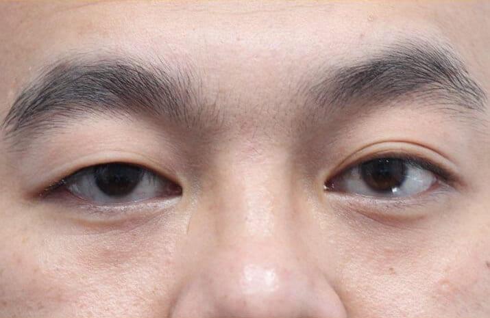 Asian Blepharoplasty in Walnut Creek, CA - Patient Before 1