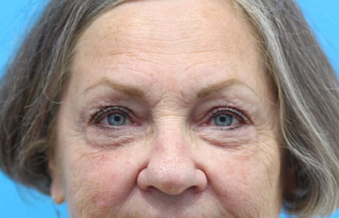 Blepharoplasty in Walnut Creek - Patient After 2
