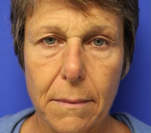 Facelift in Walnut Creek, CA - Patient Before 1